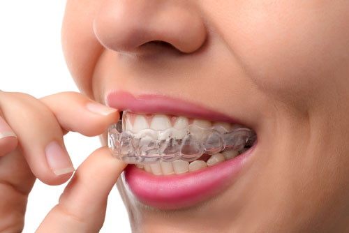 Invisalign clear braces rochester mi